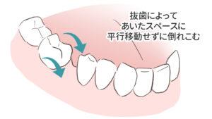 失敗例6つ目の抜歯で倒れこんだ歯をリカバリーできなかった図