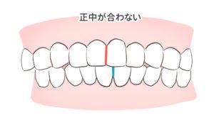 失敗例2つ目の歯列の悪さが悪化した図