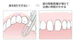 失敗例5つ目の歯を削りすぎて治療に時間がかかった図