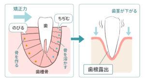 失敗例1つ目の歯根が露出した図